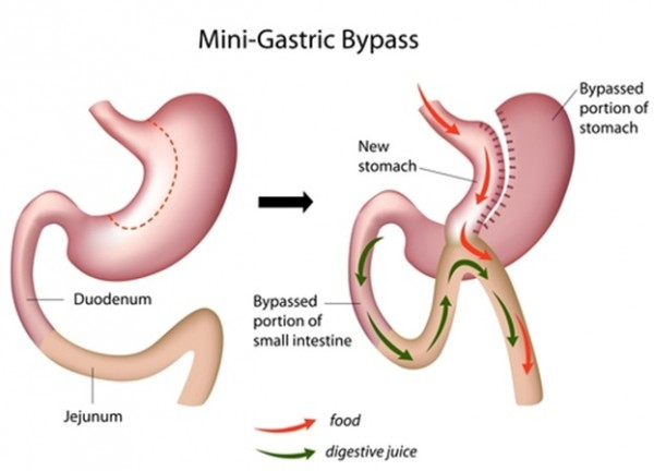 What is mini-gastric bypass?