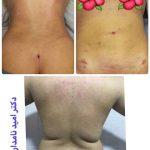 lipoma surgery