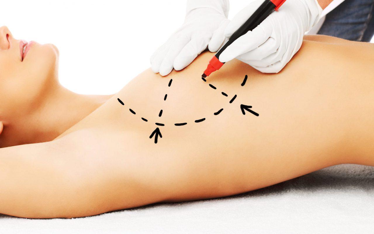 What is mammaplasty?