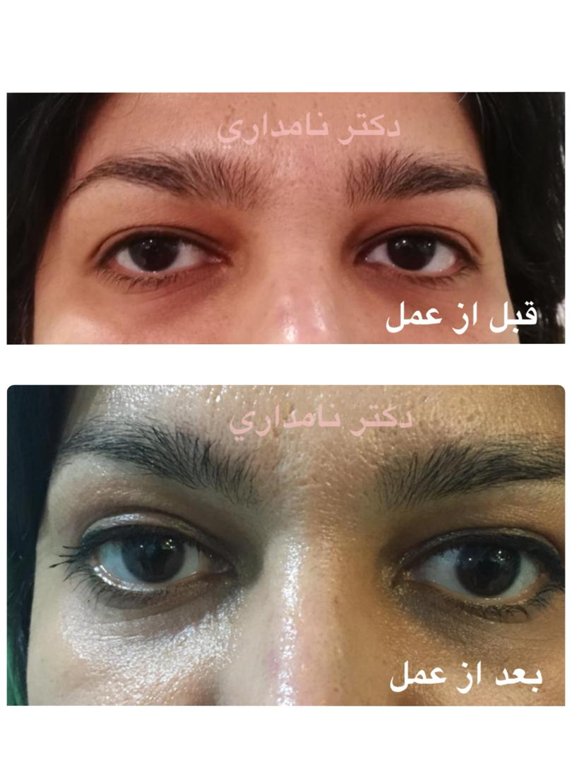 Blepharoplasty surgery to remove eye puffiness
