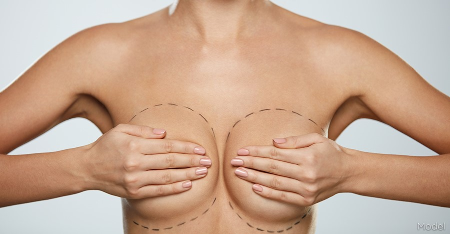 what is Mammoplasty ?