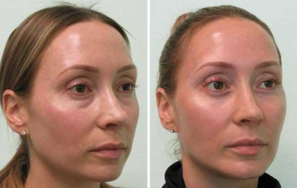مراقبت های پس از جراحی پلک