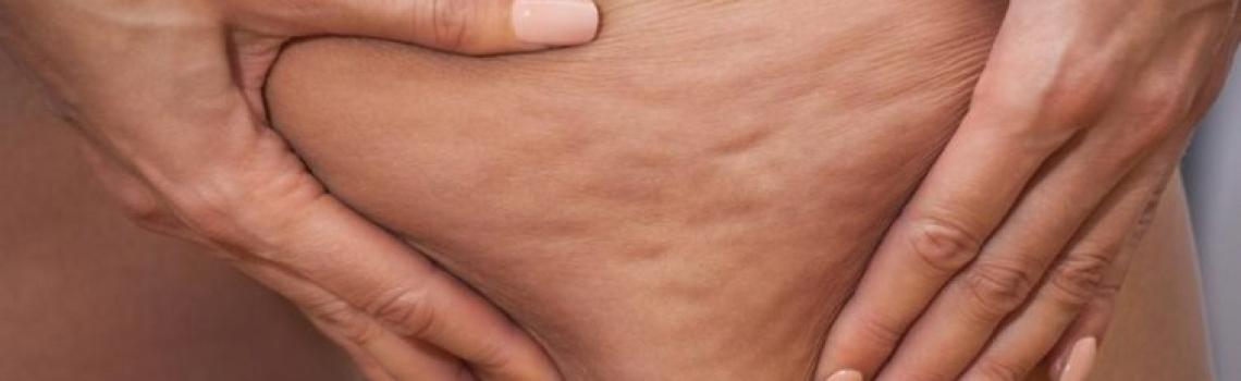 از بین بردن سلولیت پا