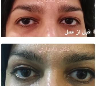 جراحی بلفاروپلاستی برای رفع پف چشم