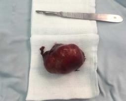 جراحی تیروئیدکتومی